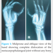 Traumatic Floating 1st Metacarpal in a 14-Year-Old Boy Managed by Close Reduction and Thumb Spica Immobilization: A Rare Case Report