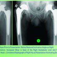 Catastrophic Failure of the Acetabular Polyethylene Liner in Ceramic-on-Polyethylene Total Hip Arthroplasty