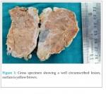 Malignant Pigmented Villonodular Synovitis-A Rare Entity