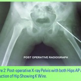 Neglected Posterior Dislocation of Hip in Children – A Case Report