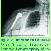 An Unusual Disengagement of the Humeral Head Component after Hemiarthroplasty: A Case Report Presentation