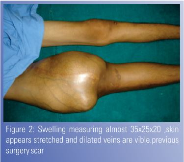unusual presentation of ewing s sarcoma Unusual presentation of relapsed ewing sarcoma  m (2010), isolated cns vasculitis: unusual presentation of relapsed  s name below to.