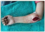 Acute Compressive Ulnar Neuropathy In A Patient Of Dengue Fever: An Unusual Presentation