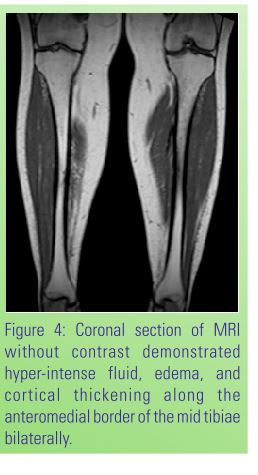 chronic bilateral tibial stress fractures  valgus treated  bilateral intramedullary
