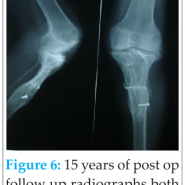 Biological Reconstruction of the Knee Joint in a Case of Giant Cell Tumor of the Tibia of 15yrs Followup- A Case Report