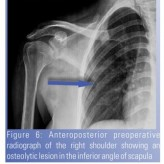 Isolated  Tubercular Osteomyelitis of Scapula – A Report of Two Cases and Review of Literature