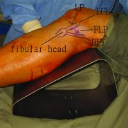Posterior Knee Loose Bodies: Treated by Posterior Knee Arthroscopy