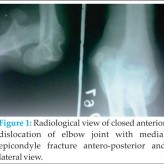 Anterior Dislocation of Elbow Joint-Case Report of A Rare Injury