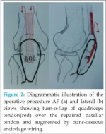 Neglected Patellar Tendon Rupture Treated by Trans-Osseous Encirclage Wire and Turn-O-Flap: Case Report