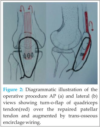 Neglected Patellar Tendon Rupture Treated by Trans-Osseous ...