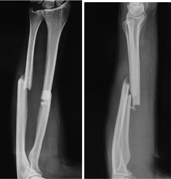 Stacked Flexible Nailing for Radius Ulna Fractures: Revival