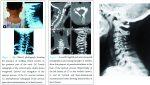 Hyperplasia of Lamina and Spinous Process of C5 Vertebrae and Associated Hemivertebra at C4 Level
