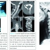 Hyperplasia of Lamina and Spinous Process of C5 Vertebrae and Associated Hemivertebra at C4 Level