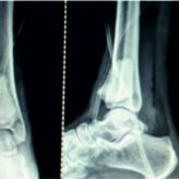 An Unusual Case of Giant Cell Tumor of the Distal Tibia