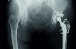 Yersinia enterocolitica Arthritis after Total Hip Arthroplasty – A Case Report