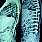 A Technical Note on Making Patient-Specific Pedicle Screw Templates for Revision Pediatric Kyphoscoliosis Surgery with Sublaminar Wires In Situu