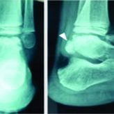 Combined Anterior and Posterior Ankle Arthroscopy for Dysplasia Epiphysealis Hemimelica of the Ankle in a Child: A Case Report