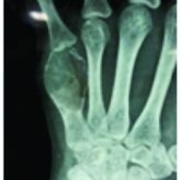 Giant-cell Tumor of Metacarpal in the Skeletally Immature Patient and Free Osteoarticular Metatarsal Transfer: Review of Literature with Case Report