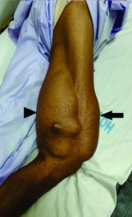 Giant Intramuscular Myxoma of Thigh– A Rare Case Report