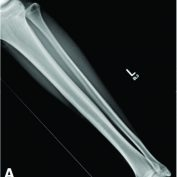 Case Report of an Isolated Proximal Tibiofibular Joint Dislocation in a Professional Ice Hockey Player