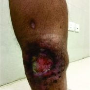Advanced Magnetic Resonance Imaging in the Evaluation of a Chronic Non-healing ulcer – A Case Report of Rare Primary Cutaneous Leiomyosarcoma