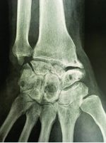 Proximal Row Carpectomy with Resurfacing Capitate Pyrocarbon Implant with Bone Graft for Scaphoid Nonunion Advanced Collapse III Wrist with Total Intramedullary Bone Resorption of the Capitate: A Case Report