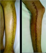 Fasciitis and Streptococcal Toxic-shock Syndrome: The Importance of Early Diagnosis and Surgical Management