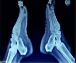Ledderhose Disease: Pathophysiology Diagnosis and Management