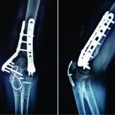 Pathological Fracture of Distal Humerus due to a Simple Bone Cyst Managed with Fibula Grafting and Osteosynthesis