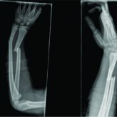 Hybrid Fixation in Pediatric Forearm Fractures, does it Predispose to Non-union? A Case Report and Literature Review