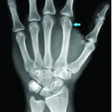 Acute Traumatic Pseudo-pointing Index Finger Due to an Isolated Second Metacarpal-Trapezoid Dislocation: A Case Report