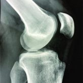 Partial Denervation for Neuroma Pain after Knee Anterior Tibial Tuberosity Exostectomy: A Case Report