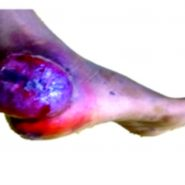 Primary Bone Lymphoma: A Rare Case of Anaplastic Large Cell Lymphoma in Calcaneus in a Child