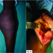 Synovial Lipomatosis with Chondroblastoma in an 8-year-old Female: A Previously Unreported Entity