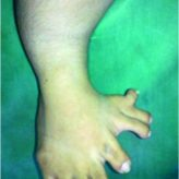 Mirror foot with Trapezoidal dysplastic Tibia– A Case Report