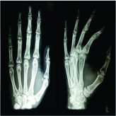 Enchondroma with Osteopoikilosis Coexisting Together –A Rare Clinical and Radiological Case Report