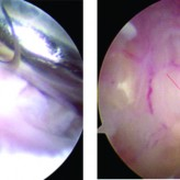 Mucoid Degeneration of the Anterior Cruciate Ligament: A Case Report and Review of Literature