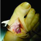 Synovial Chondromatosis in the First Metatarsophalangeal Joint: A Case Report of this Uncommon Condition and Review of Current Literature