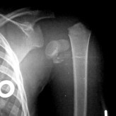 Fracture of Proximal Humerus with dislocation of Glenohumeral joint in a 3 year old child: A case report