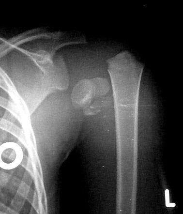shoulder dislocation current treatment guidelines pdf