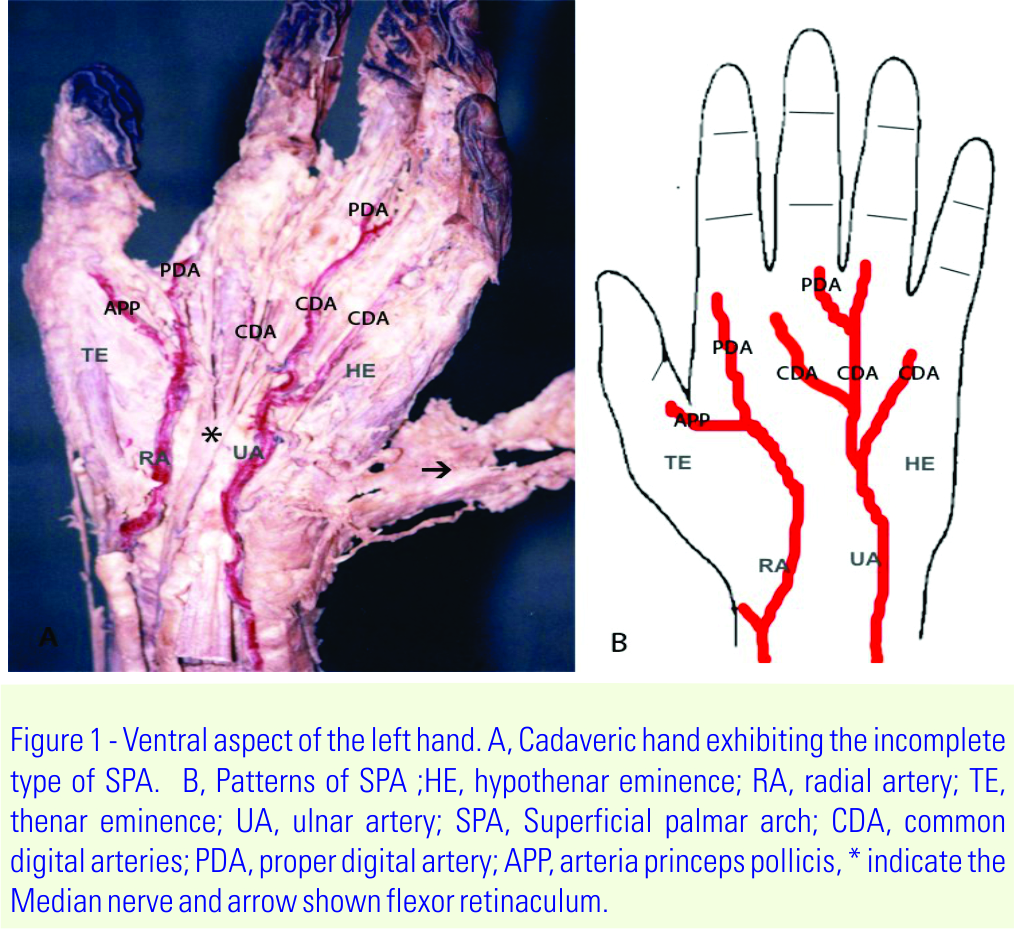 The Incomplete Superficial Palmar Arch | Journal of ...