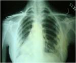 Case 8 – JOCR Oct – Dec 2011