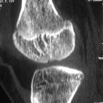 Osteochondritis Dessicans- Primary Fixation  using Bioabsorbable Implants