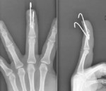 Closed Extension-Block Pinning for Management of Mallet Fracture