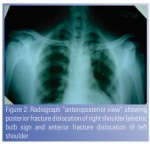 Asymmetrical Fracture Dislocation of Shoulder –  A Case Report and Review of Literature