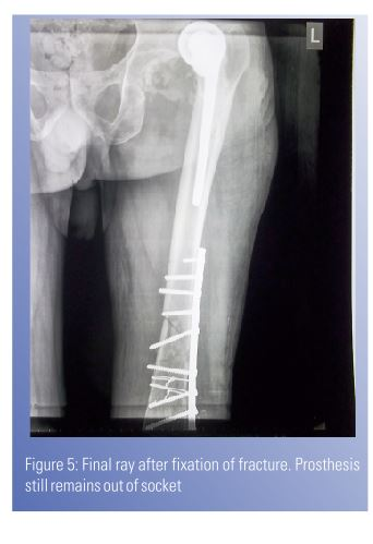 Ipsilateral Fracture Shaft Femur With Neglected