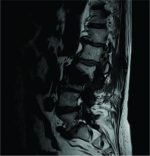 Parvimonas micra Spondylodiscitis: A Case Report and Systematic Review of the Literature