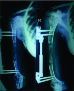 Topic :Complications and Outcomes Following Humerus Lengthening – An Illustrative Case Report