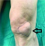 A Giant Ganglion Cyst Arising from Lateral Hoffa's Fat Pad of the Knee