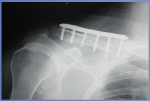 Progressive Brachial Plexus Palsy after Osteosynthesis of an Inveterate Clavicular Fracture